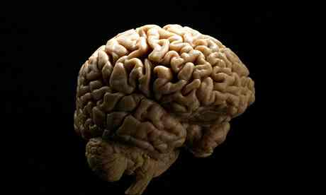 files/images/A-human-brain-006.jpg