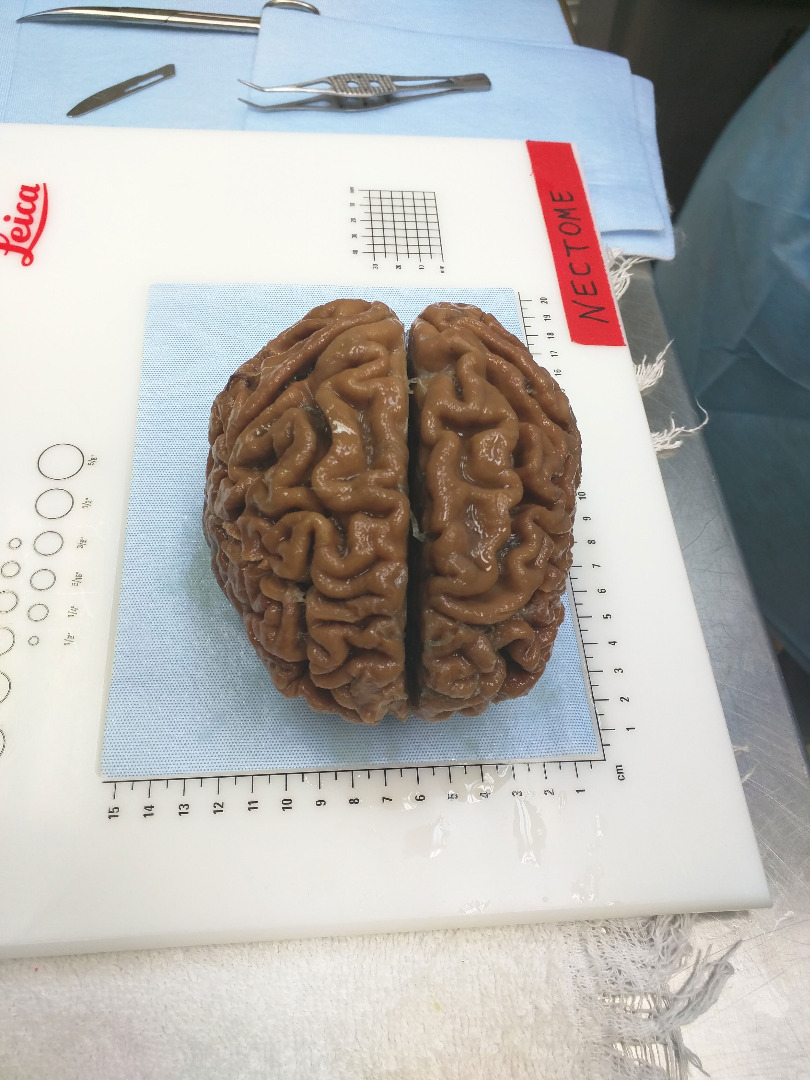 files/images/preserved-brain.jpg